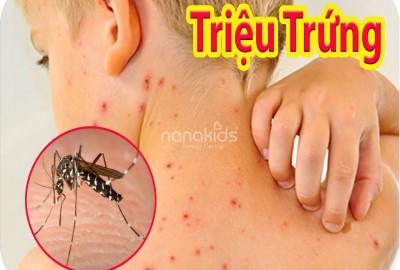 Nguy hiểm khôn lường khi trẻ mắc sốt xuất  và mùa hè và cách chăm bé mau khỏi.
